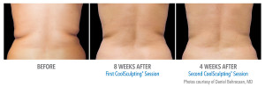 coolsculpting Before & after Pictures