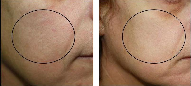 Superfacial 3-in-1 Skin Rejuvenation and Anti-Aging